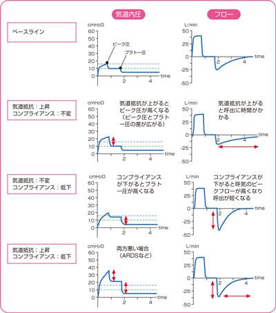 【人工呼吸器】第11回 気道内圧波形の変化をとらえよう ...